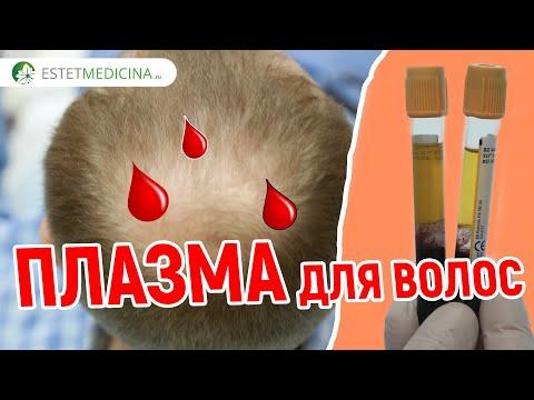 Плазмолифтинг волос. Процедура при выпадении волос. PRP для волос