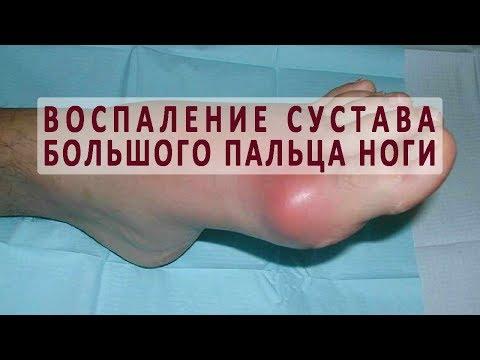 Тягучая боль в суставах кроссворд