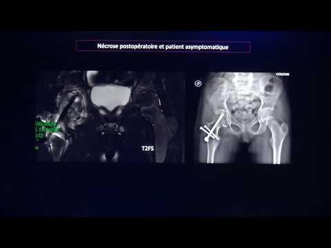 Gonartroza bilaterală 2 grade ale tratamentului articulației genunchiului