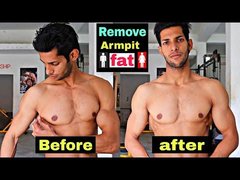 Motive pentru pierderea în greutate neintenționată