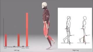Análisis Biomecánico de la Marcha Normal y deportiva