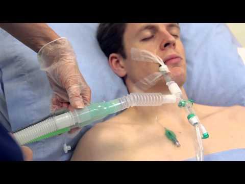 Intersurgical TrachSeal sonda de aspiración cerrada