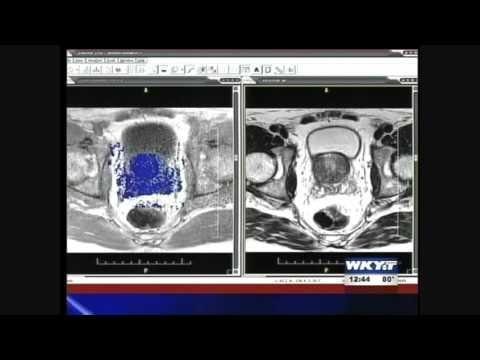 Gay sesso MRI