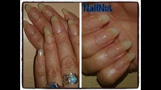 Nail Maintenance And Proper Application Of Strengthener