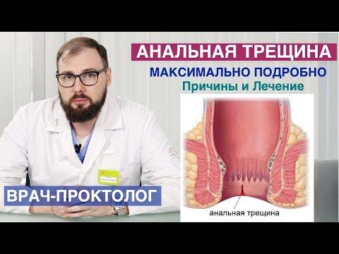 Анальная трещина - симптомы, причины, лечение, профилактика.