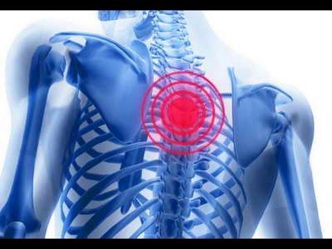 Лечебная физкультура грыже шейного отдела позвоночника