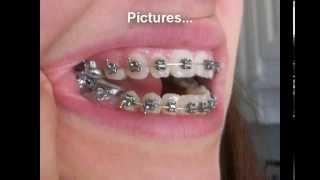 Traitement Appareil Dentaire - Les Déffirentes étapes A Suivi