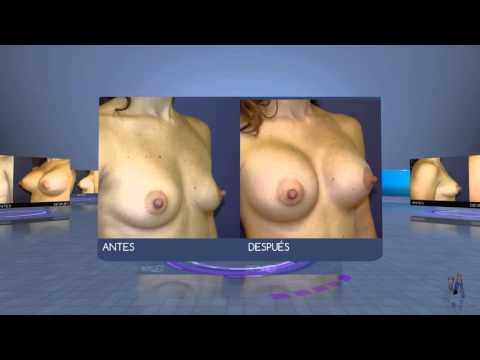 El mejor cirujano plástico el aumento del pecho