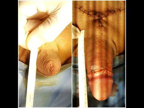 Erezione dopo gli steroidi
