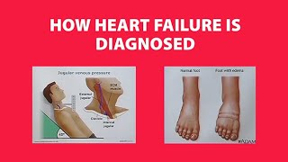 How Heart Failure is Diagnosed