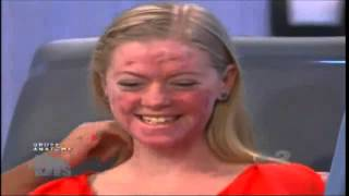 Dr. Sandra Lee treating an aggressive form of acne, acne conglobata, on The Doctors