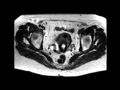 Hogyan lehet gyógyítani a papillomavírust emberben