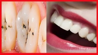 Como Clarear Os Dentes Na Mesma Hora Free Video Search Site Findclip