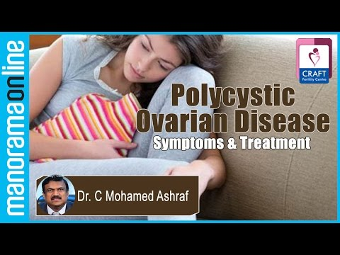 Video Polycystic Ovarian Disease | Symptoms & Treatment | Dr. C Mohamed Ashraf | CRAFT Fertility Centres