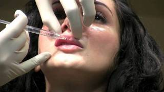 Juvederm Ultra XC Lip Augmentation Filler Injection in Washington DC