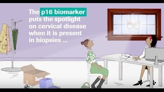 Introducing the p16 biomarker test for cervical biopsies