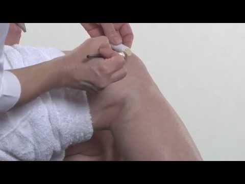 Μακιγιάζ σώματος για κιρσούς και φλεβίτιδα
