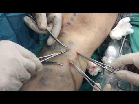 Lulcère de loesophage le variqueux