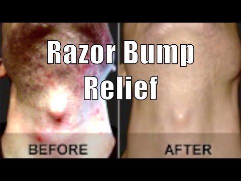 Video ASPIRIN RAZOR BUMP RELIEF | Cheap Tip #8