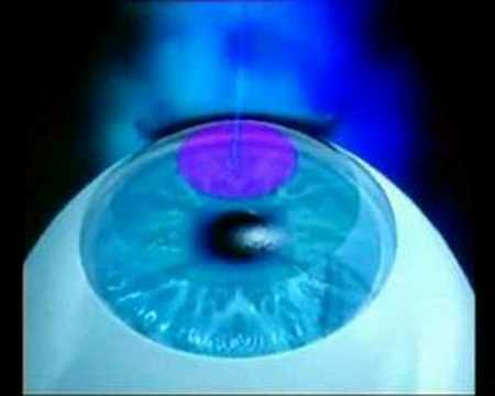Операция по восстановлению зрения бесплатно