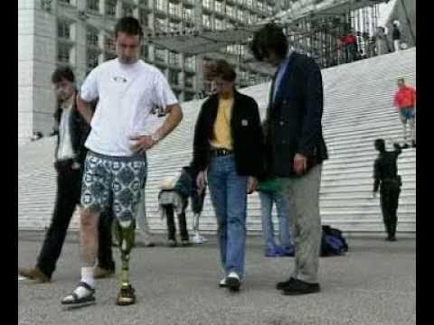 Otto Bock C Leg and C Walk Foot