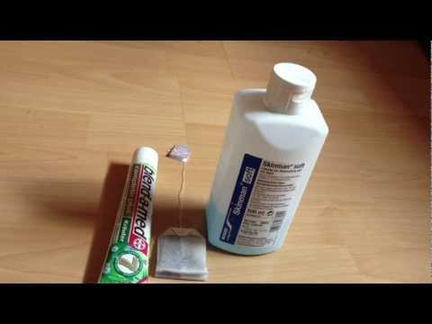 Wie der Honig und der Zimt von den Pigmentflecken helfen