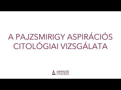 Aszcariasis mechanizmus és a terjedési útvonalak