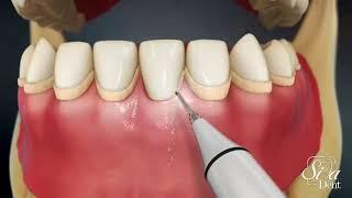 اسکيلينگ و جرمگیری دندان | دندانپزشکی سیمادنت