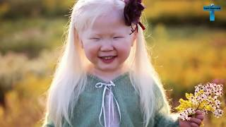 Top 10 Kids Who Are Unique & Amazing In The World
