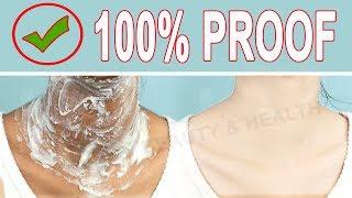 5 मिनट में काली गर्दन को गोरा करने का सबसे अच्छा उपाय/Remove Dark Black Neck Easily