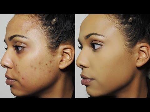 Cream ngiti glow ng pigment spots