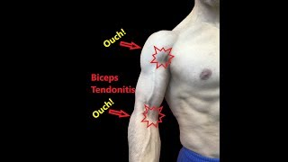 Biceps Tendonitis - Stretches And Fascial Release