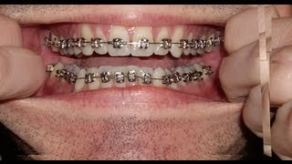 Braces - Photo taken every day - Before and After Transformation - Orthodontics Timelapse