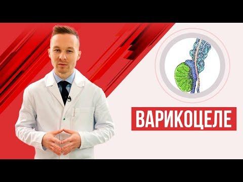 Варикоцеле - подробное видео с 3D ( симптомы, лечение, когда нужна операция?)