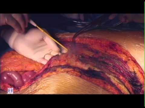 Trombosi di una vena humeral