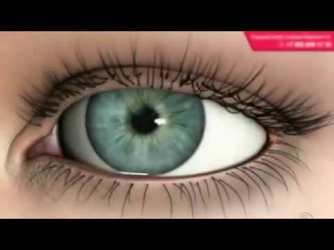 Влияют ли линзы на ухудшение зрения