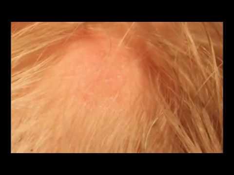 Как замазать пигментные пятна на лице фото