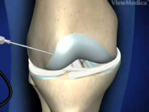 Dolori articolari dellarto inferiore