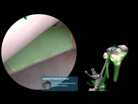 Dureri articulare la genunchi în partea inferioară