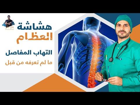 ٤٨- علاج هشاشة العظام والتهاب المفاصل الفعال _تاكل الغضاريف _ كلام لم تسمعه من قبل