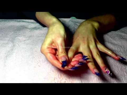 Quale unguento contro un fungo su mani