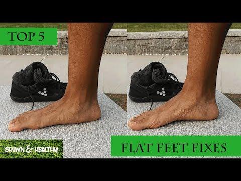 Płasko-koślawe zniekształcenie stóp w przeglądach dziecięcych