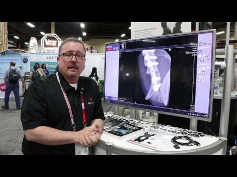 Video MyVet Imaging Digital Dental X-Ray System