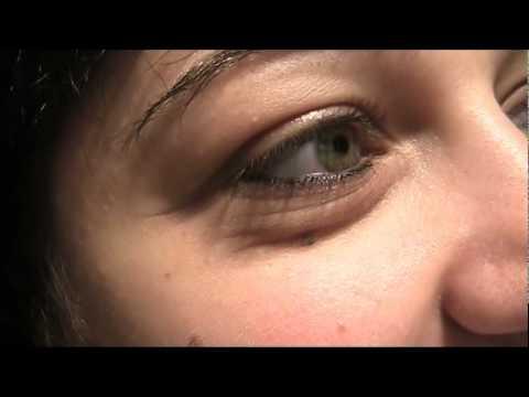 In linea di cliniche di emorroidi di operazione