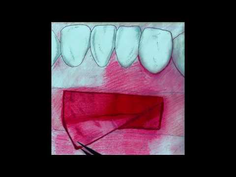 Практикум по пластике мягких тканей десны в области зубов и имплантатов. Часть 14