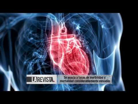 Lo que es la causa de la hipertensión arterial