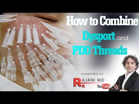 Dysport and PDO Threads