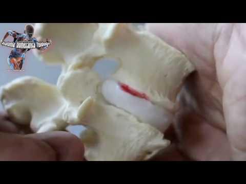 Commozioni di cervello di dolore nei colli
