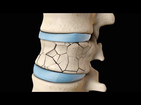 Schmerzen im Nacken-Lymphknoten unter dem Kiefer auf der rechten Seite ist und sich zu dem Ohr
