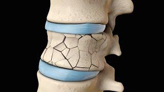 Back Surgery | Vertebroplasty and Kyphoplasty | Nucleus Health